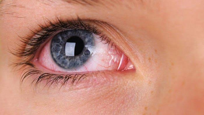 Tanaman ini Dapat Menjaga Mata Anda dari Gangguan Penglihatan